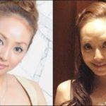 芸能人の整形外科失敗の画像まとめ!顔面崩壊や劣化を噂される有名人は?